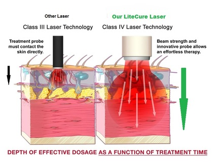 The deeper penetration with deep tissue laser therapy.